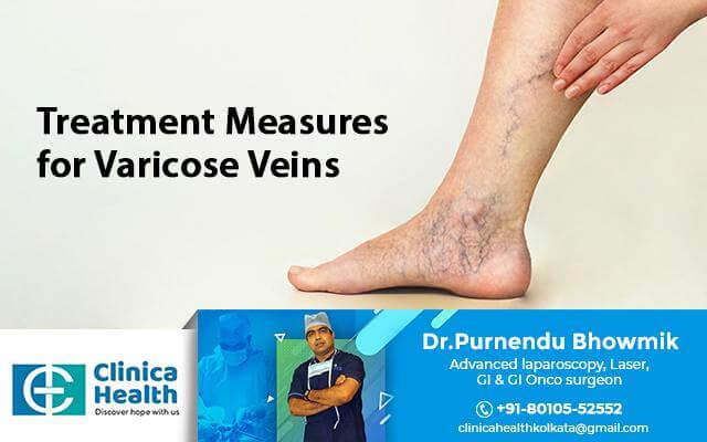 varicose veins surgeon