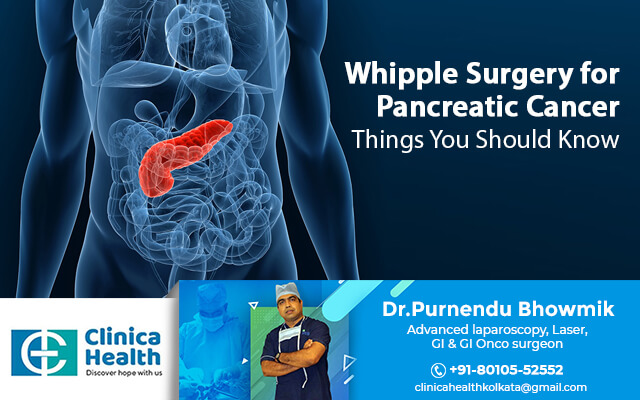 whipple surgery