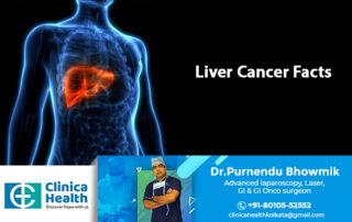 liver cancer specilaist