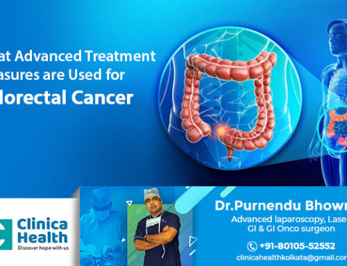 What Advanced Treatment Measures are Used for Colorectal Cancer.