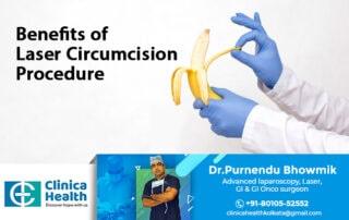 circumcision Doctor