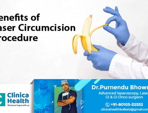 Benefits of Laser Circumcision Surgery